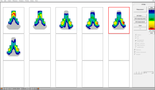 gebiomized Saddle Pressure Mapping Adelaide