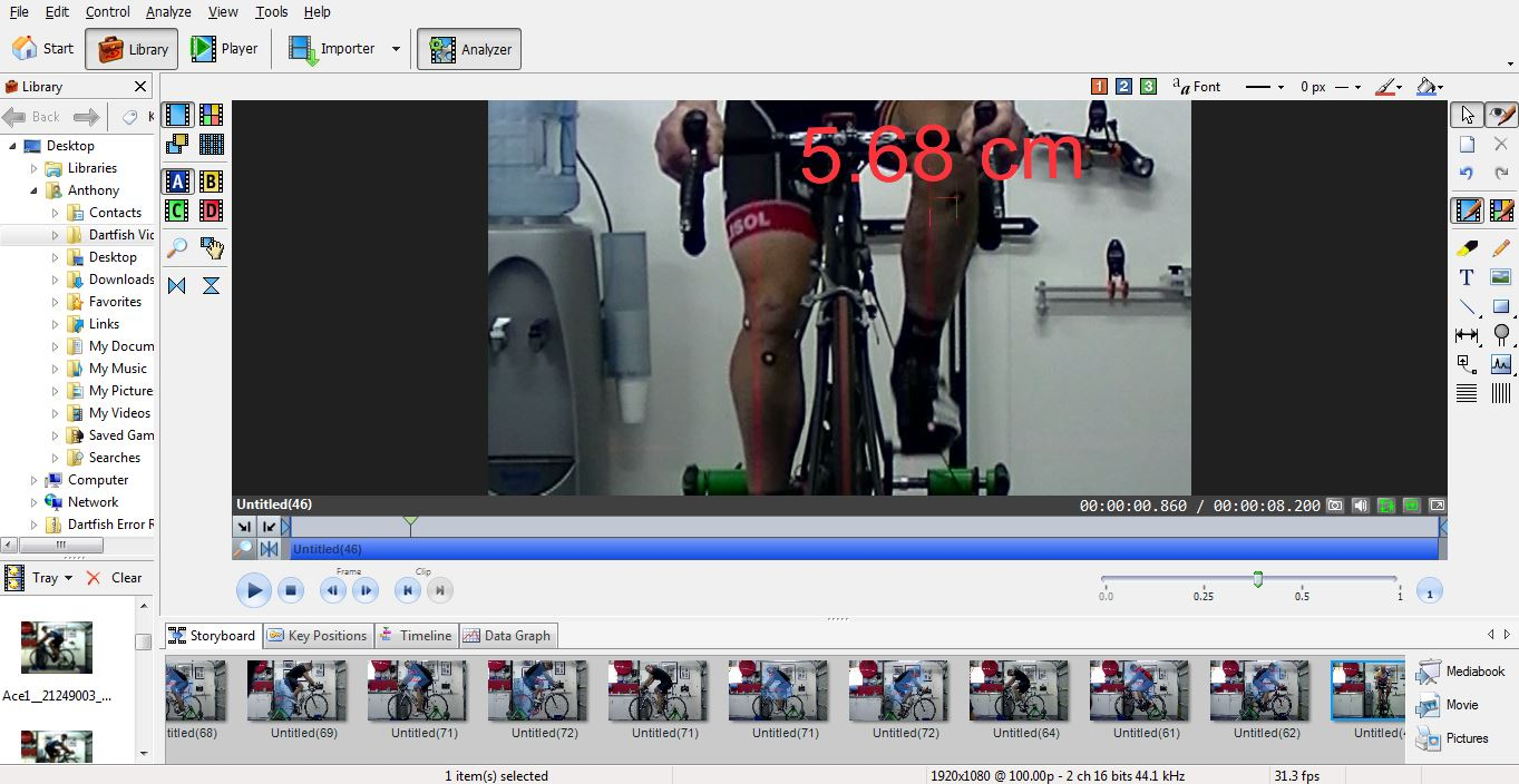 leg alignment bike fit
