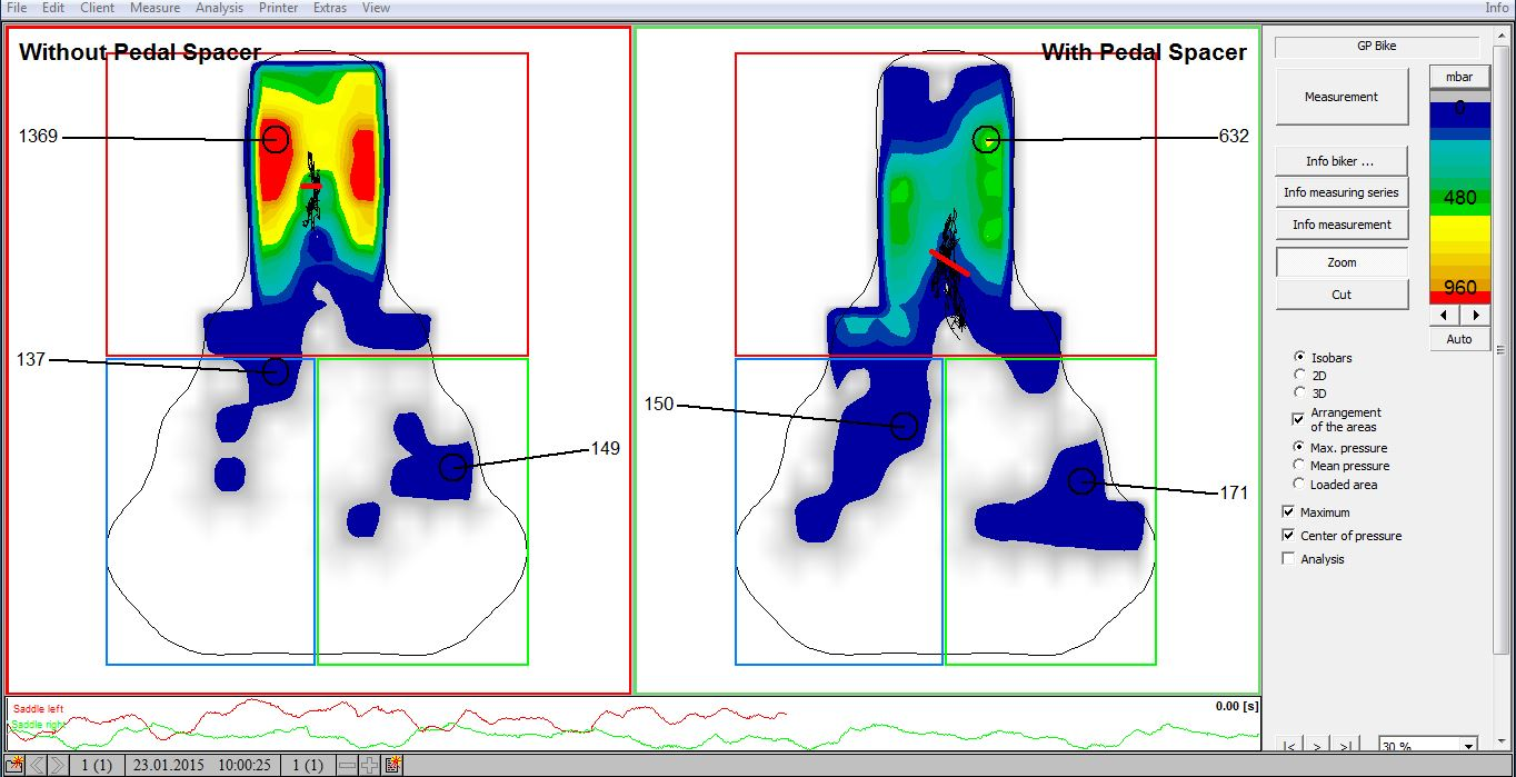 gebiomized Saddle Pressure Mapping