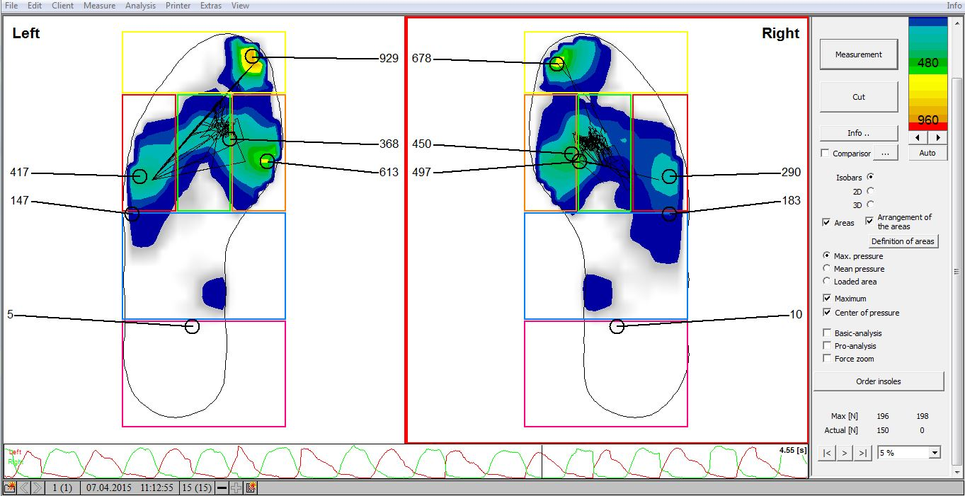 Planar Pressure Mapping - Image 3